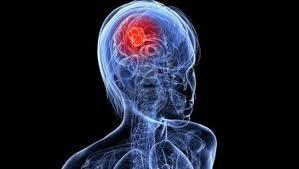 """<img src=""""https://goigu.com/foto.jpg"""" alt=""""¿Qué ocurre en el cerebro durante un orgasmo?""""/>"""